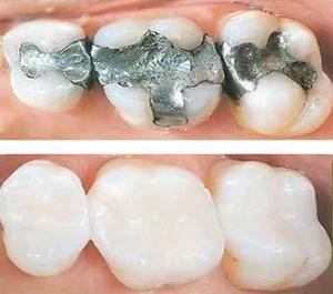 General Dental Services | Schmitt & Midkiff General Dentistry